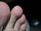 掌蹠膿疱症-時事戯言!炎症性腸疾患(クローン病)