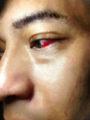 充血-時事戯言!炎症性腸疾患(クローン病)