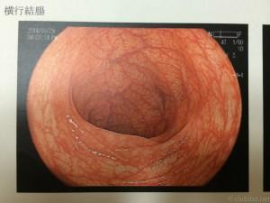 大腸内視鏡 横行結腸