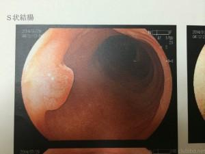 大腸内視鏡 S状結腸