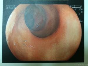 大腸内視鏡 直腸