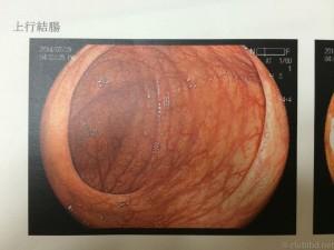 大腸内視鏡 上行結腸