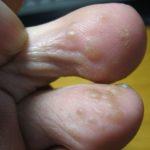 掌蹠膿疱症になった