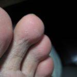 掌蹠膿疱症がほぼ消える-クローンの合併症100128