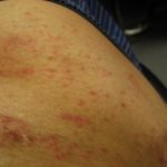 湿疹、発赤も派手に拡散中だ-レミケードの副作用?100606
