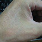 10回目レミケード投与後4日目に皮膚症状が忽然と消え去る-クローン病100620