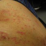 掌蹠膿疱症治療のため皮膚科での再診-レミケードの副作用?100703