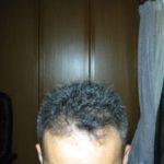 プレドニンも効いているし散髪へ行った-クローン病 ステロイド100725