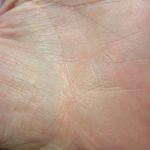 掌蹠膿胞症の掌の部分は治った-体記110703