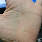 忽然と消えた掌蹠膿疱症とか。