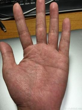 レミケード後の手